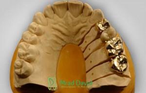 Keramik- und Goldinlays